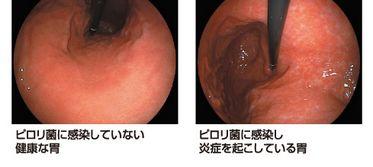 ピロリ菌胃画像
