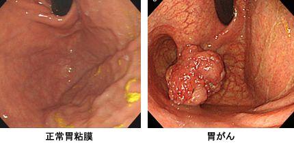 ピロリ菌胃がん