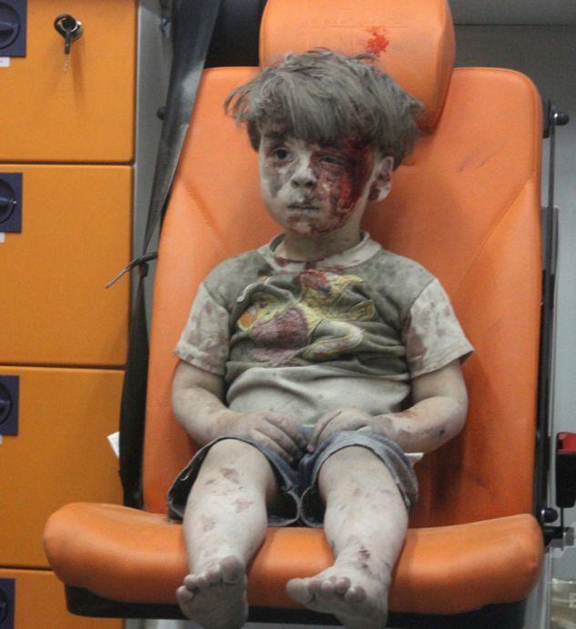 シリアの少年オムラン君の捏造動画疑惑について